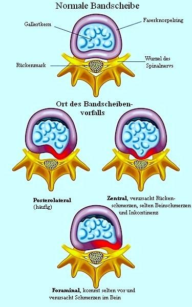 Bandscheibe mit Protrusion oder Bulging des Gallertkerns, der die Nervenwurzel komprimiert.