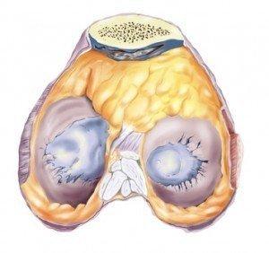 Knorpelschaden Knie, Arthrose, Osteosklerose, Degeneration, Gelenk, Ausrutschen, Schmerzen, Schmerz, Symptome, Ursachen, Funktionseinschränkung, Entzündung, ältere Menschen, Schwellung, Ödem