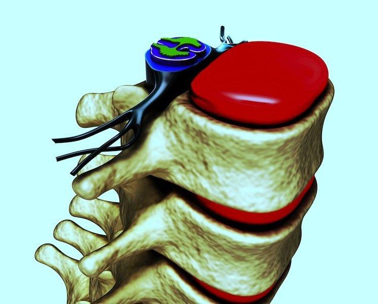 Anatomie der Wirbel, Nerv, Muskel, Physiotherapie und Rehabilitation, Rücken, Lendenbereich, lumbal, Kreuzbein, sakral, Neuropathie, Bandscheibenschaden, Bandscheibenvorfall, Protrusion, Bulging, Wirbelsäule, Bandscheibe, Nervenwurzel, Faserknorpelring, Anulus fibrosus, Gallertkern, Nucleus pulposus, Gelenkfortsätze, L1, L2, L3, L4, L5