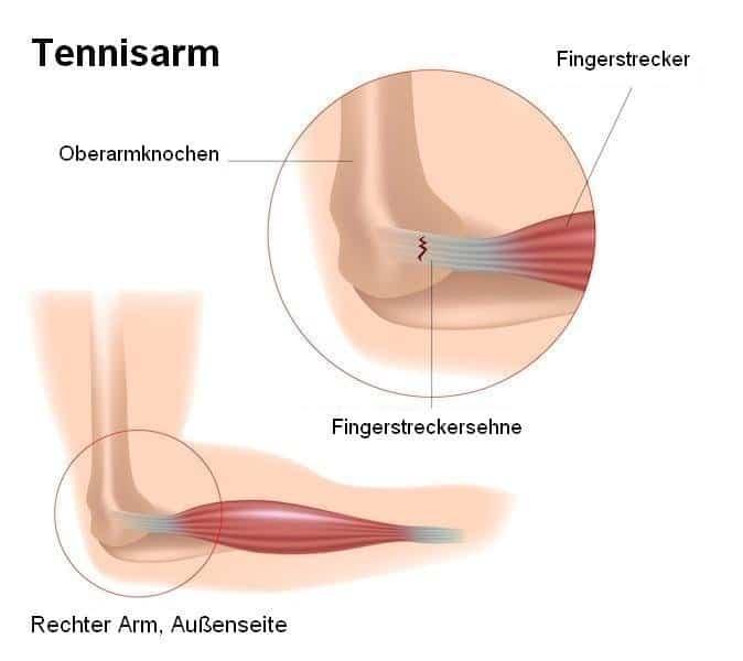 Tendinitis, Epicondylitis, extensor, Gelenk-, Finger, Schmerzen, Entzündungen, Risse, Verletzungen, böse, Tennis