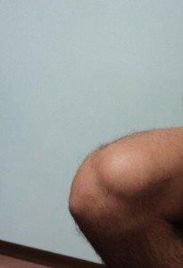 Bursitis, Knie, suprapatellaris, Kugel, Flüssigkeit, Schmerzen, Beugen, Flexion, Wasser, Infiltration, absaugen, Blase, Therapie, Physiotherapie und Rehabilitation, Behandlung, sitzen, Entzündung