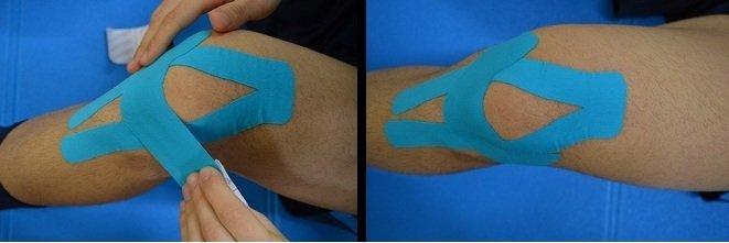 Anwendung, Taping, Sehnen, Patella Sehnenentzündung, Schmerzen, zu erklären, Sequenz, wie es funktioniert