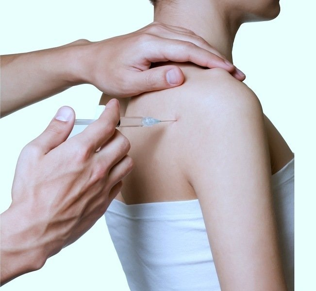 injection,shoulder,pain,bursitis