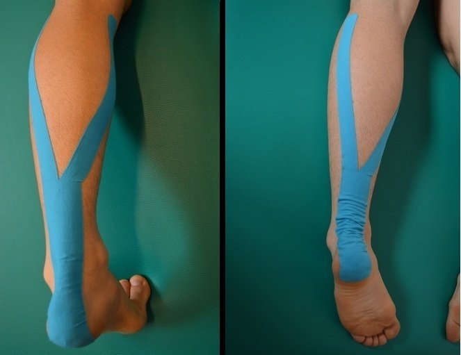 Riss, Läsion, Verletzung, Zerrung, Wade, Taping, Kinesio, Therapie, Drainage, Entspannung