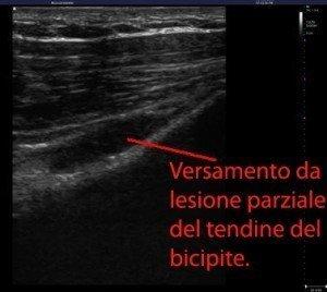 Das Bild zeigt das Sonogramm der langen Oberarmbizepssehne; die Verletzung ist inkomplett, weil die Kontinuität der Sehne nicht unterbrochen ist, sondern unterhalb der Läsion durch die Außenfasern fortgeführt wird.