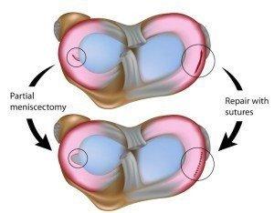 Operation, Meniskus, chirurgischer, Eingriff, Naht, Meniskektomie, partielle, totale, Meniscus, Schmerzen
