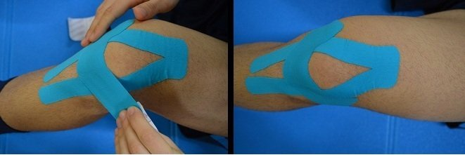 sehnenscheidenentzündung ellenbogen bandage