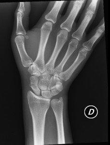 Fraktur, Bruch, Kahnbein, Skaphoid, Handwurzel, Hand, Handgelenk, Algodystrophie, distal, körperfern, proximal, körpernah, Läsion, Verletzung, Knochen, Ausrutschen, ausbleibende Konsolidierung, Osteoporose, junge Leute, Schmerzen, Schmerz, Symptome, Ursachen, Funktionseinschränkung, Entzündung, ältere Menschen, Beugen, Flexion, Überlastung, Sturz, Trauma, Haus, Fahrrad, Schwellung, Ödem.