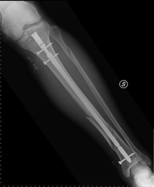 Nagel, intramedullär, Schrauben, Schienbein, Tibia, Diaphyse, Schaft, Fraktur, Bruch, Röntgenaufnahme, Schmerzen, Verletzung, Läsion