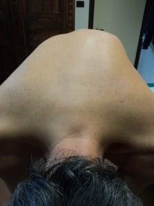 Verformung, Nerv, Muskel, Kontraktur, Überdehnung, Zerrung, Riss, Schwellung, Ödem, Entzündung, Schmerzen, Schmerz, Messerstich, Alter, nach dem Eingriff, postoperativ, Physiotherapie und Rehabilitation, Rücken, lumbal, Lenden, sakral, Kreuzbein, Zervikalgie, Nackenschmerzen, Zervikobrachialgie, Lumboischialgie, Lumbocruralgie, Sportler, Fußballspieler, schwere Arbeiten, Volleyball, Basketball, Radsport, Neuropathie, Bandscheibenschaden, Bandscheibenvorfall, Protrusion, Bulging, Skoliose, Konkavität, Konvexität, Buckel, Gibbus