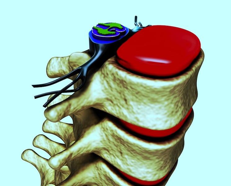 Wirbel Spalte, Bandscheibe, Wirbelsäule, Nervenwurzel
