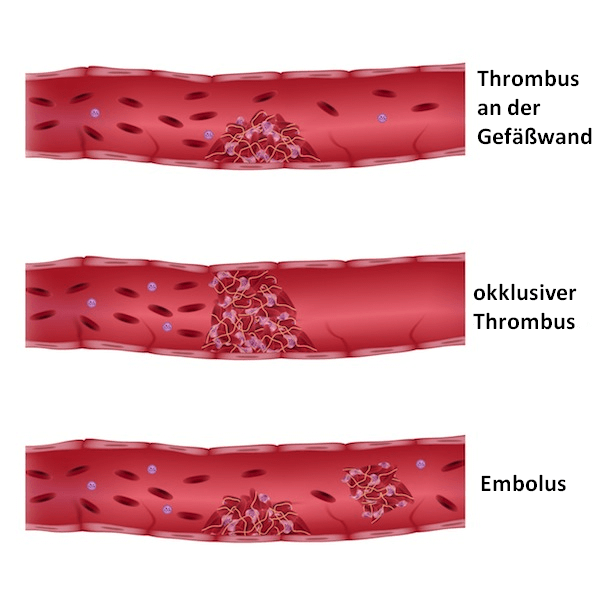Embolus, Blut, Fett, Thrombus