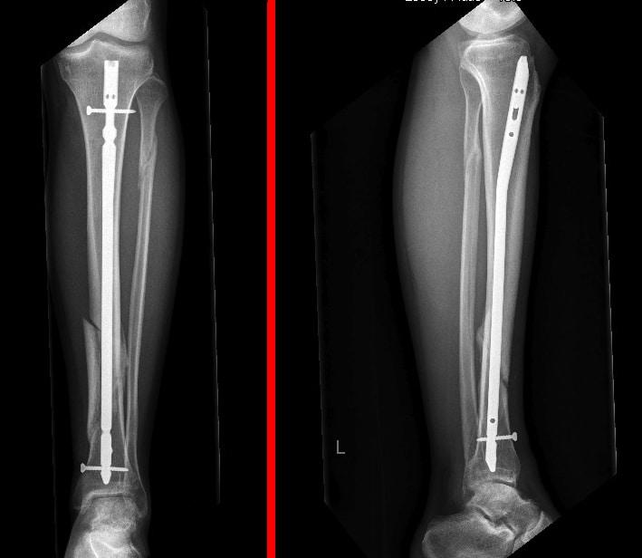 Dynamisierung, Nagel, intramedullär, Fraktur, Bruch, Schienbein, Tibia, Eingriff, chirurgisch, Schmerzen