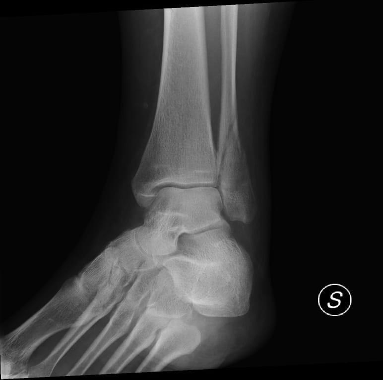 Fraktur, Bruch, Abscherfraktur, Röntgenbild, Außenknöchel, Sprunggelenk, Malleolus, lateralis, Bein, Schmerzen, Verletzung, Läsion, Entzündung
