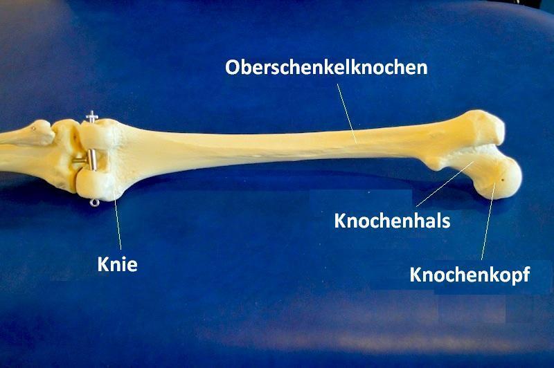 Oberschenkelknochen, Femur, Fraktur, Bruch, Hüfte, Knie, Diaphyse, Schaft, Knochen, Riss, Schmerzen