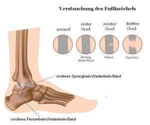 Distorsion, verstaucht, Grad, Verletzung, Läsion, Schwere, Bänder, Ausmaß, Riss, Ruptur, Bluterguss, Schwellung, Schmerzen