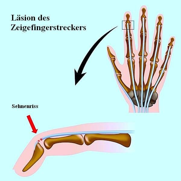 Läsion,Sehne,Finger,Strecker,Schmerzen,Schwellung