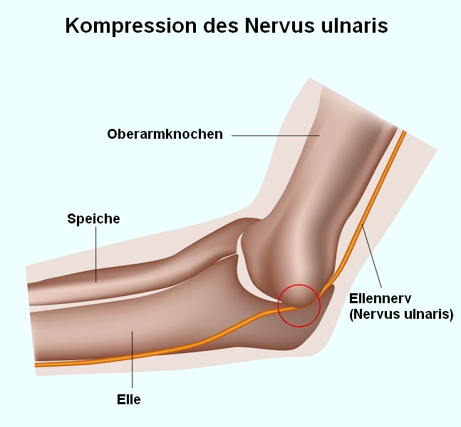 Kompression,Ellennerv,Nervus,ulnaris,Syndrom,Ulnarisrinne