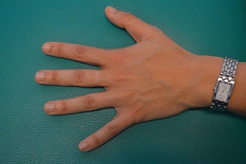 rechte kalte hand
