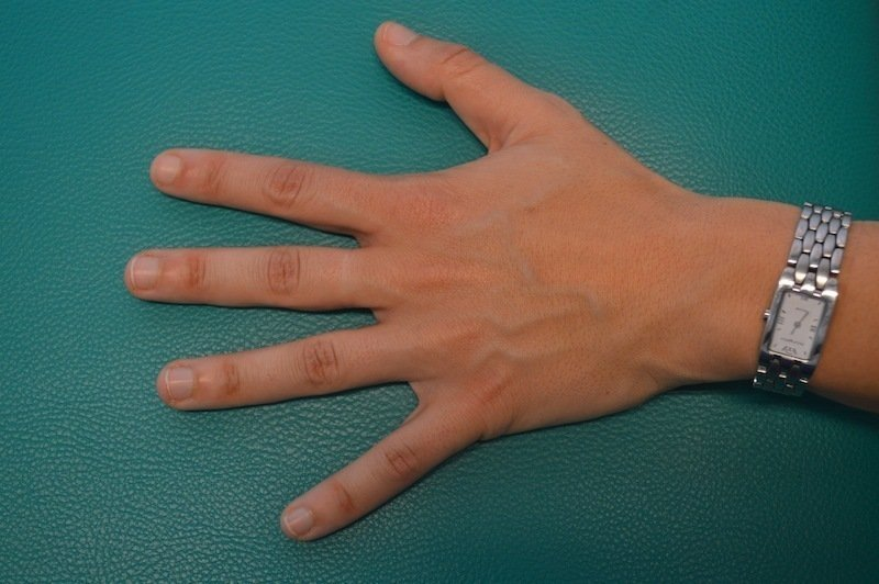 Hand,normal,geschwollen,Schmerzen,Trauma,Symptome,Therapie,Behandlung