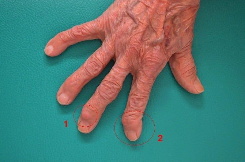 Arthrose,Finger,Hand,Knoten,Heberden,Schiefstand,letztes Fingerglied
