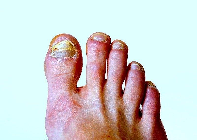 Pilz,großer Zeh,Fuß,Infektion,Schmerzen,Zehen,Schuhe