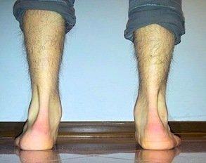 Pronation,Supination,Hyperpronation,Fuß,Hohlfuß,Plattfuß