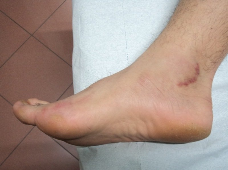 Tarsaltunnel,Operation,Freilegung,Narbe,Schmerzen,Kribbeln,Brennen,Taubheitsgefühl