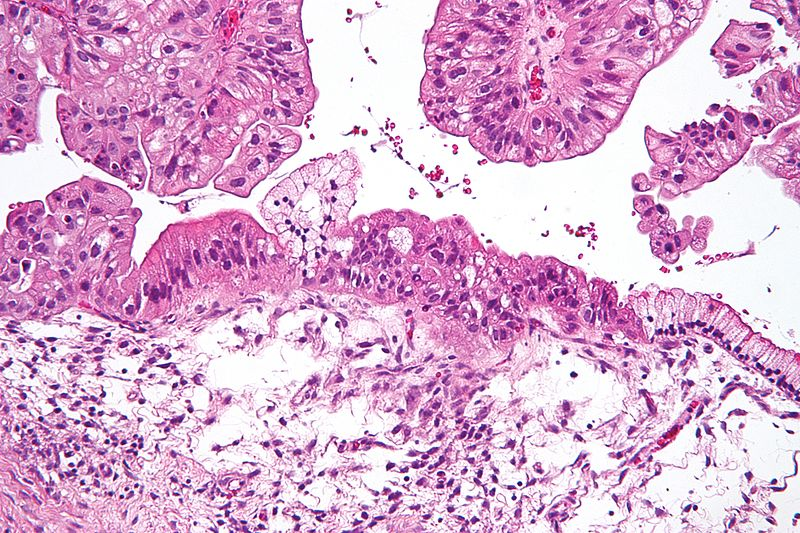 Eierstockkrebszellen,Eierstöcke