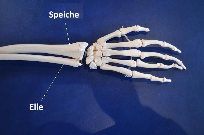 Handgelenk,Speiche,Radius,Elle,Ulna,Fraktur,Modell,Anatomie,Hand,Unterarm,Bruch