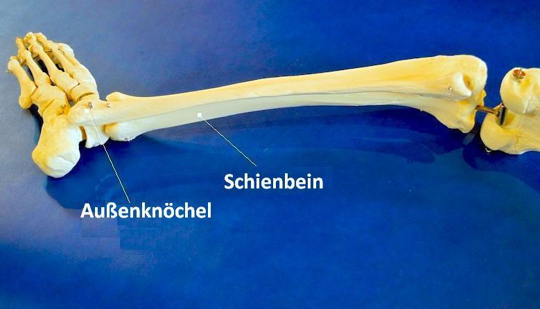 Fraktur,Bruch,Schienbein,Knöchel