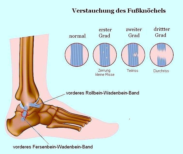 Riss,Ruptur,Achillessehne,Schmerzen,Eingriff,chirurgisch