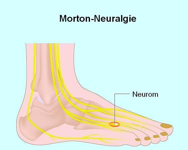 Neurom,Morton,Fuß,Zeh,dritter,vierter,Schmerzen,Neuralgie,Brennen,Operation
