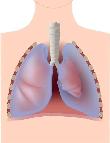 Pneumothorax,linke,Lunge,kleiner