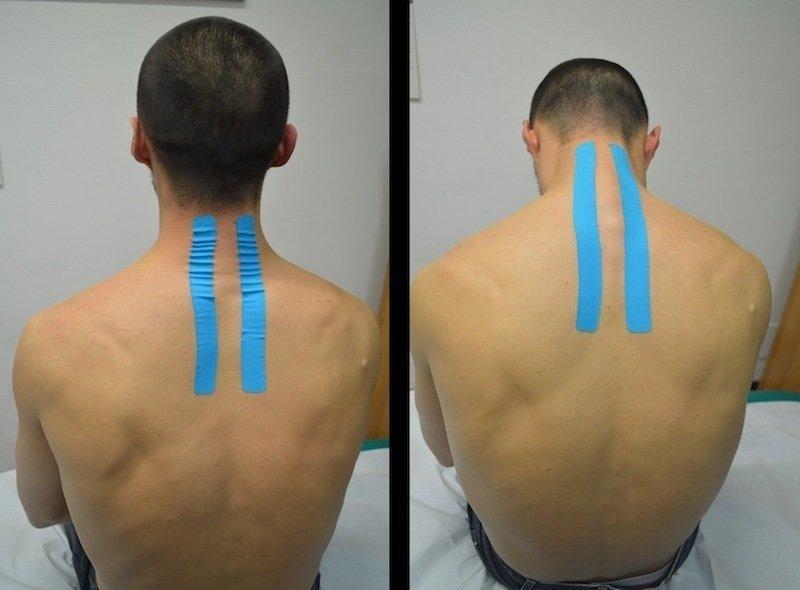 Kinesio,Taping,Nacken,Nackenschmerzen,Halswirbelsäule,Verband,Pflaster