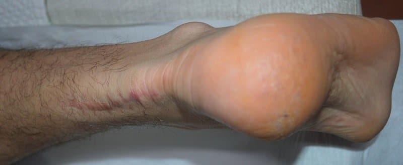 Narbe,chirurgischer,Eingriff,Achillessehne