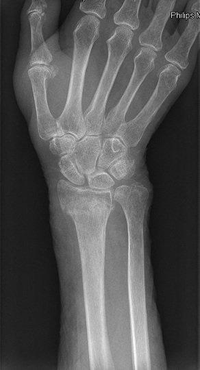 Röntgenbild,Griffelfortsatz,Radius,Speiche,Ulna,Elle,Fraktur,Bruch,Läsion,Verletzung,Schmerzen