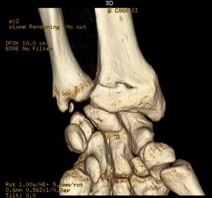 CT,Handgelenk,Fraktur,Bruch,Verletzung,Läsion,Colles,Sturz,Hand,vorn,Extension,Strecken