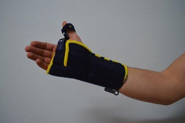 Schiene,Gips,Fraktur,Bruch,Handgelenk,Immobilisation,Schmerzen,Heilung,Genesung,Physiotherapie
