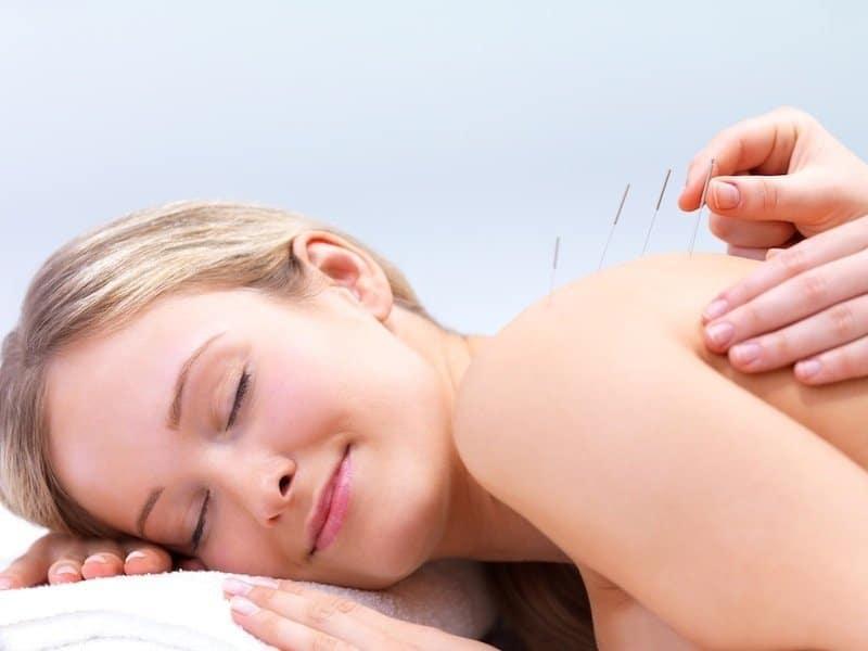 Akupunktur,alternativ,natürliche,Behandlungsmethode,Frozen,Shoulder,Schultersteife,Kapsulitis,Schulter,Schmerzen,Therapie,Bewegung