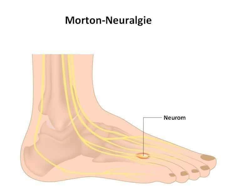 Morton,Neurom,Neuralgie,Eingriff,chirurgisch,Schmerzen,Kribbeln,Nerv,konstant,unerträglich