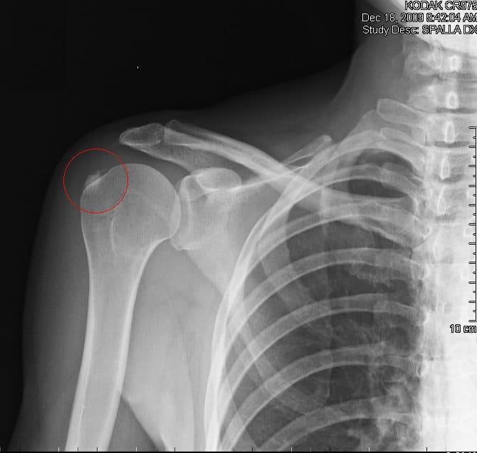 Kalkablagerung,Tendinitis,Sehnenentzündung,Schulter,kalzifizierend,Schmerzen,Entzündung