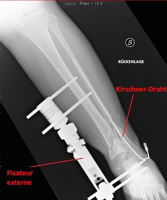 Fraktur,Bruch,Schienbein,Tibia,Eingriff,Fixateur,externe,Nägel,Drähte,Kirschner