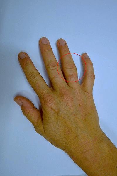 Finger,geschwollen,Ringfinger,Mittelfinger,kleiner Finger,Daumen