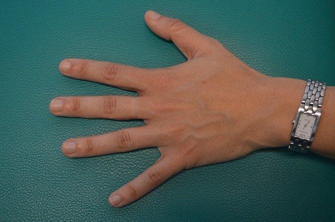 Schnappfinger,schnellender Finger,Zeigefinger,Daumen,Mittelfinger,Ringfinger