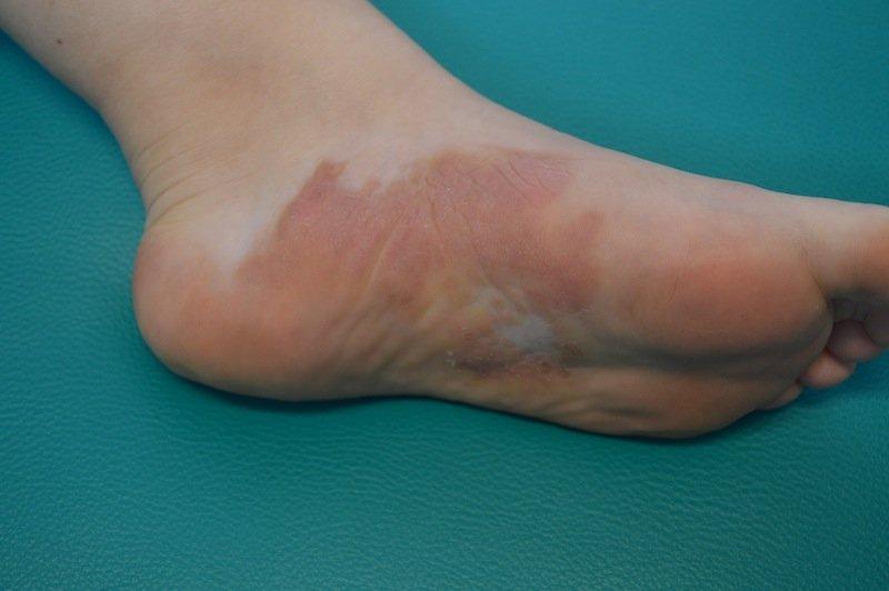 Schuppenflechte,Psoriasis,Kortison,Cortison,Behandlung,Reizung,Entzündung,Reaktion,Autoimmunerkrankung,Haut